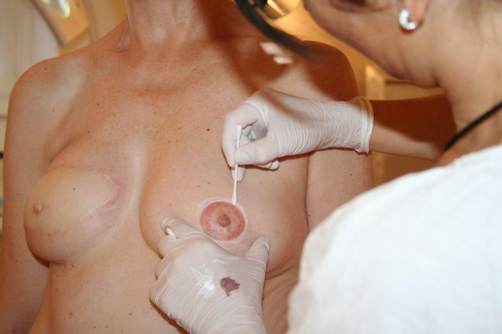 hygiene brust5