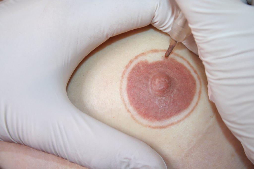 pigmentation der brust
