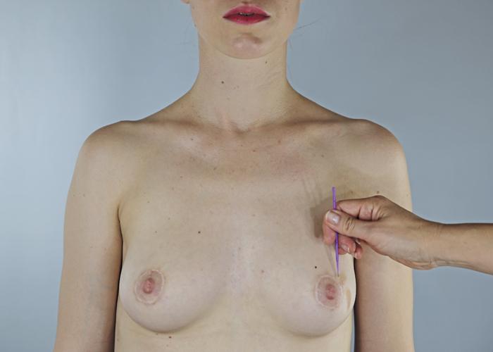 frau brust frei