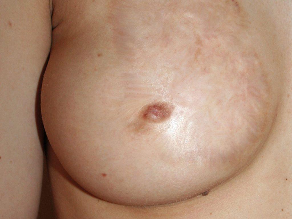 brust-vorher-bild
