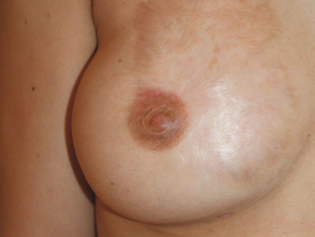 brust-nachher-bild