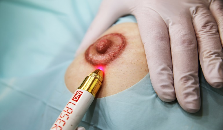 areola micropigmentation medizinkosmetik berlin 770x450